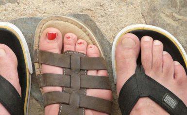 Wrastające paznokcie – bolesny problem